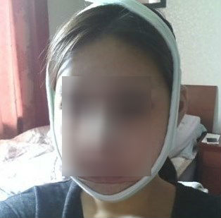 faceband