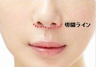 jinchu2