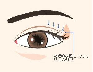 eyeputi